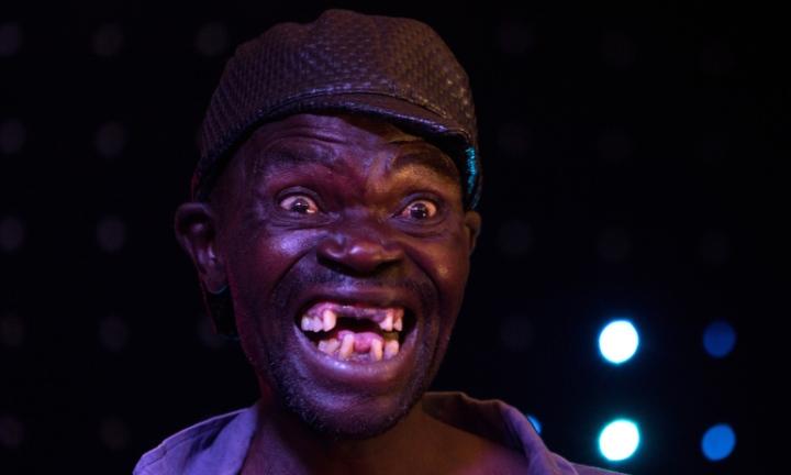 Inilah dia Mr. Ugly 2015 yang menuai kontroversi. (Foto: Izin nyomot dari Google)